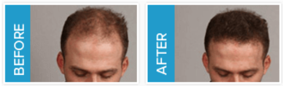 Folicall Hair Health Support Before and After