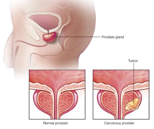 The Prostate Protocol Program Review