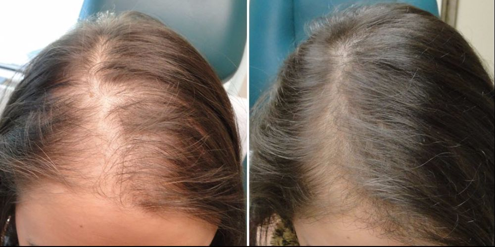HairFortin Pills - Advanced Hair Regrowth Remedy