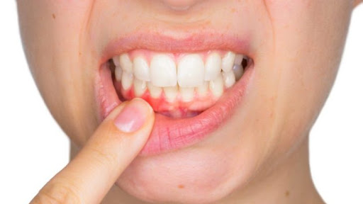 Steel Bite Pro Supplement Reviews: Reduce Tooth Decay