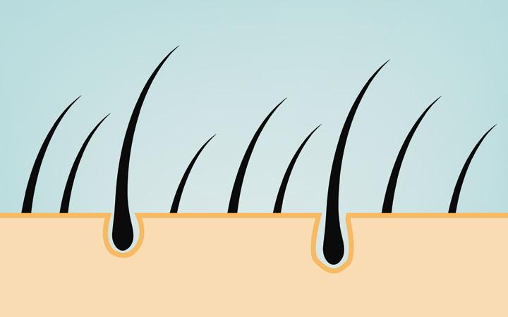 Folicall Hair Pills - Does It Work?