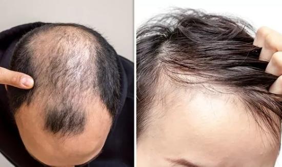 FoliFort Before & After Results